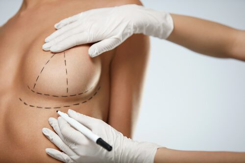 closeup hands in gloves drawing surgical lines on beautiful woman breasts-img-blog