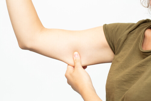 Should I Consider Arm Lift Surgery?
