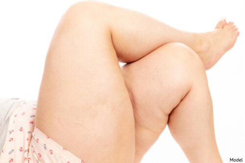 A woman in severe pain due to lipedema in her legs.