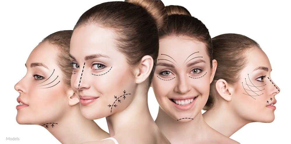 Surgical arrows drawn on facial contours that can be enhanced with plastic surgery.