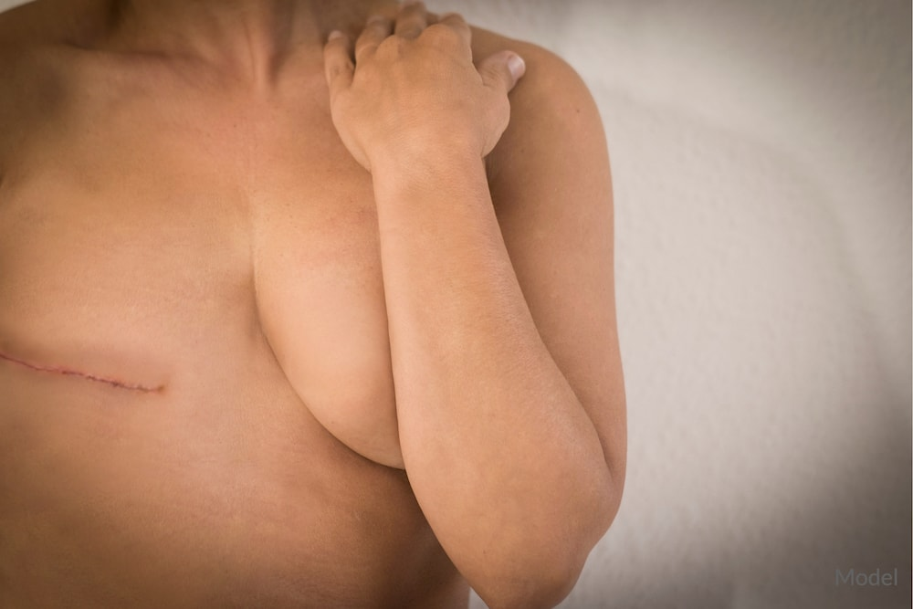 Can Plastic Surgery Help With Breast Trauma?