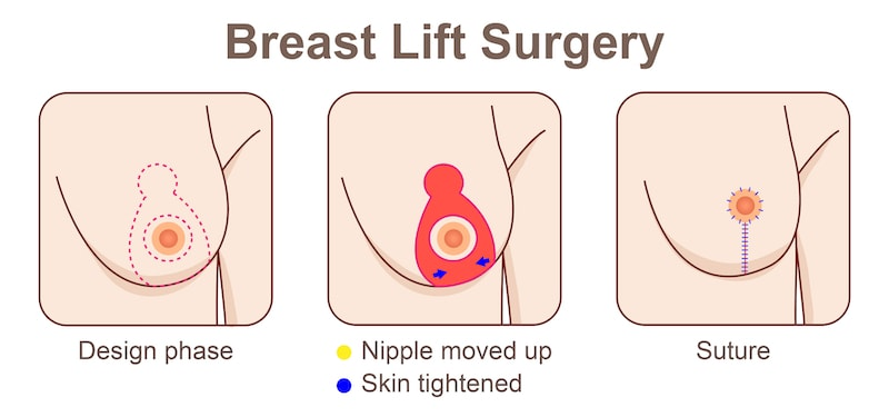 Illustration demonstrating the techniques used during a breast lift surgery.