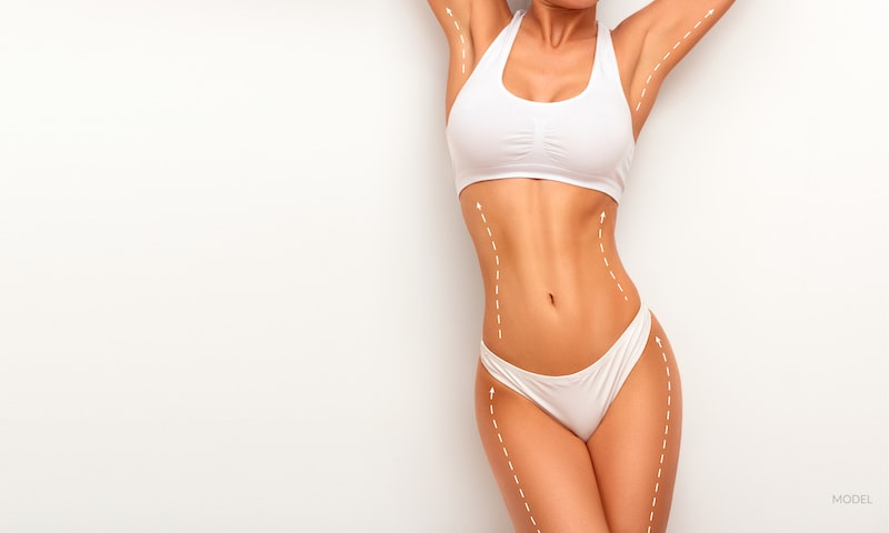 Woman with slim body contours and lines drawn on curves for a plastic surgery concept.